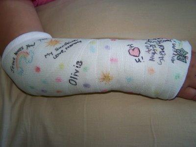 arm-cast.jpg